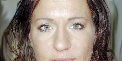 Woman with under eye puffiness