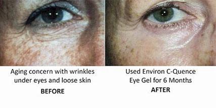 top skin care ingredients at Bella Reina Spa