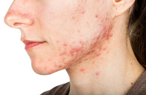 Benefits of Chemical Peels for Acne