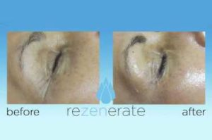 Rezenerate Before and After Nano Technology