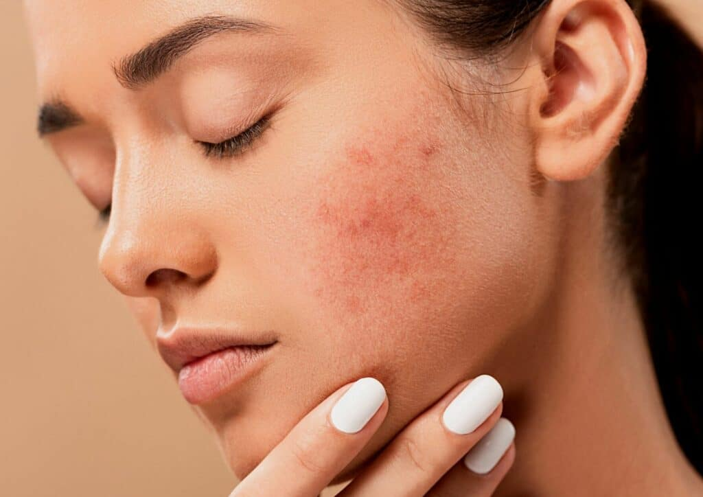 The Seven Deadly Sins of Bad Acne