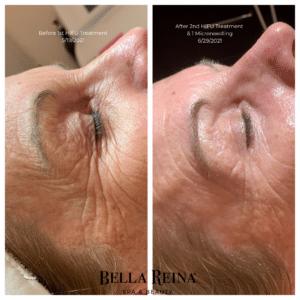 Bella Reina Spa HIFU Facial Before & After