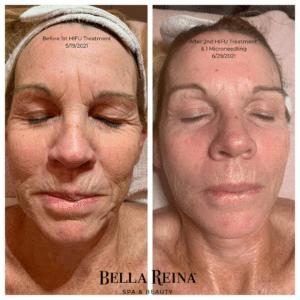 Bella Reina Spa HIFU Facial Treatment Before & After